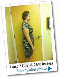 weight-loss-before